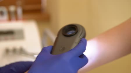 the doctor examines the mole of the patient using a Dermatoscope. dermatologist examines the patients hand. plastic surgery. Stock Footage