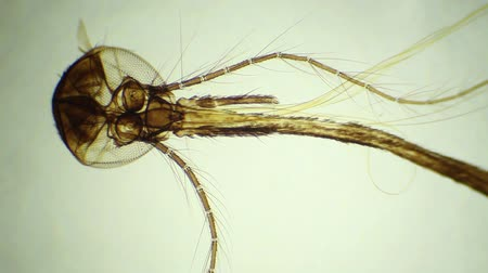 mikroskop : House fly moeth parts under the microscope, background. (Musca)
