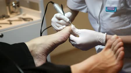 ayaklar : man for medical pedicure