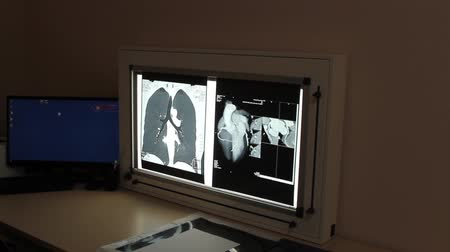 sebész : X-ray of internal organs in a medical clinic