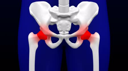 yoğunluk : Disease of the joints. Red blinking on the bones. Loopable Luma matte. 3D rendering. Stok Video