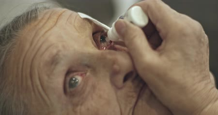 eyepieces : Senior woman putting eye drop in injured eye Stock Footage