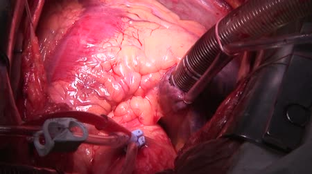 chirurgia :  Cardiac surgery. Beating Heart. Wideo