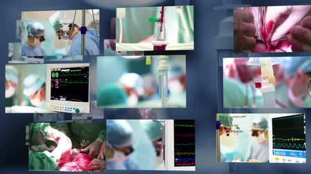 acil durum : Medical montage. Surgery Stok Video