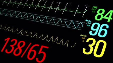 adat : Patient Monitor in ICU. Closeup view.