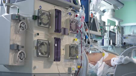 rim : Continious Dialysis Medical Procedure Performing in ICU with Patient on background