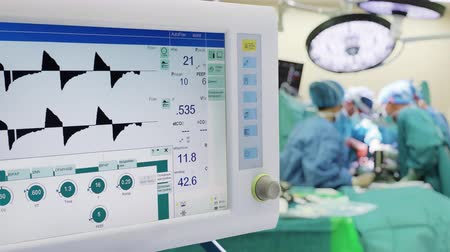 intensive care unit : Mechanical Lung ventilation in Operation Room with Surgeons on Background Stock Footage