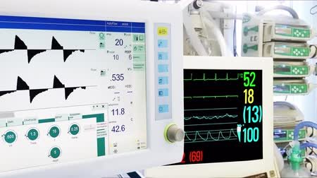 ventilátor : Medical Equipment in ICU. Mechanical Lung ventilation, Cardiac and Vital Sign Monitoring. Dostupné videozáznamy