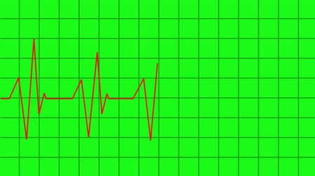 puls : heartbeat lines animation - green screen effect