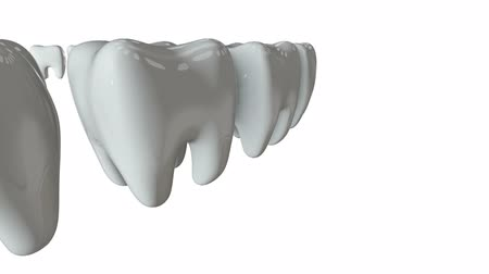 blanqueamiento : Diente de oro en una fila de los dientes blancos. Render 3d Dental, entre multitud, concepto de negocio. Video disponible en Full HD y HD.