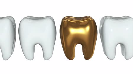 口腔病学 : Golden tooth in a row of the white teeth. 3D render. Dental, out of crowd, business concept. Video available in FullHD and HD render footage 動画素材