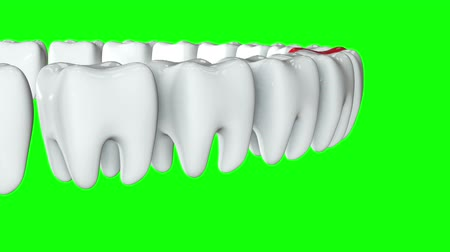 dent : Red tooth in a row of the white teeth. 3D render. Dental, out of crowd, business concept. Video available in FullHD and HD render footage Stock Footage