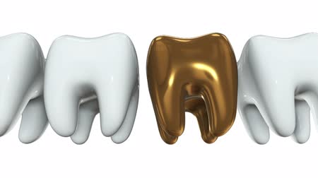 fogászat : Golden tooth in a row of the white teeth. 3D render. Dental, out of crowd, business concept. Video available in FullHD and HD render footage Stock mozgókép