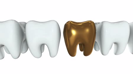 dor de dente : Golden tooth in a row of the white teeth. 3D render. Dental, out of crowd, business concept. Video available in FullHD and HD render footage Vídeos