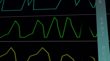 rpm : EKG ECG monitor extreme close up macro - Going to Flat signal