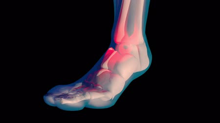kostka : 4K Ankle Pain in Human Body Transparent Design with Matte 3D Animation