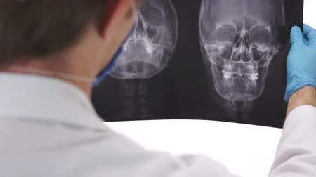 crânio : Health Care Doctor Studying an Xray Vídeos