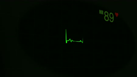 Medical background, medical concept. ECG heart beat monitor, green heartbeat line on the monitor at black background. Medical cardiogram, 1080HD video background. Stock mozgókép