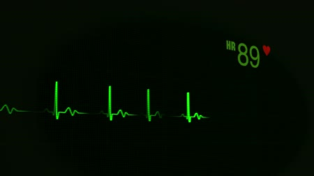 Medical background, medical concept. ECG heart beat monitor, green heartbeat line on the monitor at black background, uninterrupted line. Medical cardiogram, 1080HD video background.