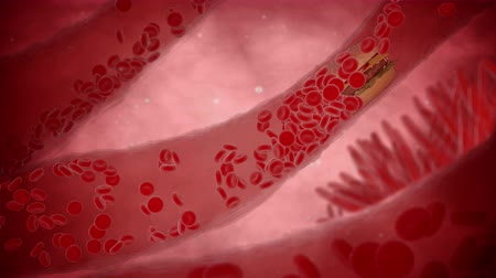 human artery : Clogged Artery with platelets and cholesterol plaque, concept for health risk for obesity or dieting and nutrition problems. Alpha matte include Stock Footage