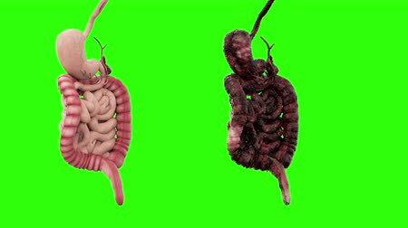trawienie : healthy intestines and disease intestines on green screen rotate. Autopsy medical concept. Cancer and smoking problem.