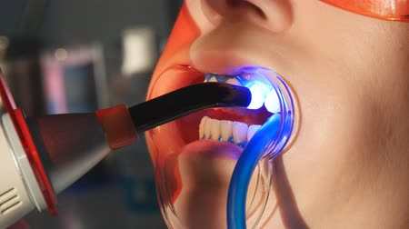 salya : Dentist working with dental polymerization lamp in oral cavity.