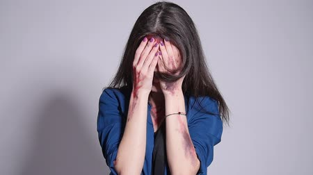 itaatkâr : A young woman who suffered from domestic violence. Bruises and blood on the face Stok Video