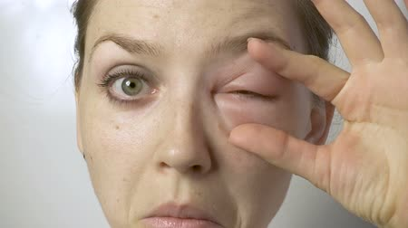 itchy : Young woman with allergy trying open eye