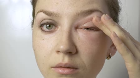 şişme : Young woman with allergy touching eye