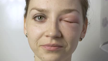 itchy : Smiling young woman with allergy on eye