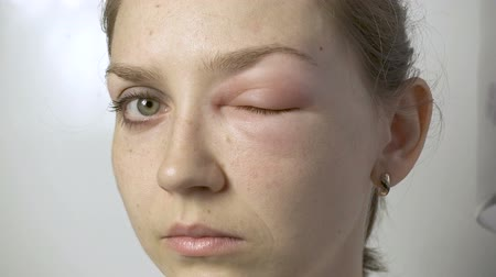 itchy : Young woman with allergic reaction touching eye Stock Footage