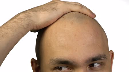 teljesen : Bald man with half face touching head on white background Stock mozgókép