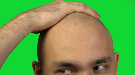 teljesen : Bald man with half face touching head on green background Stock mozgókép