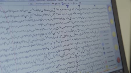 encephalopathy : Close-up shot of monitor with results of monitoring the human brain activity. Stock Footage