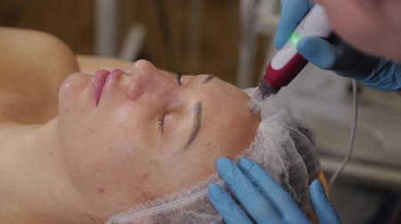 уборка : Professional beautician woman performs micronidling facial skin.