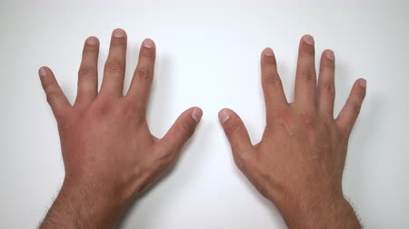 inflamed : Comparison of two male hands stung by bee or wasp. Hand swelling, inflammation, redness are signs of infection. Insect bite on left hand on white background