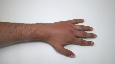 inflamed : Male hand stung by bee or wasp. Hand swelling, inflammation, redness are signs of infection. Insect bite on left hand