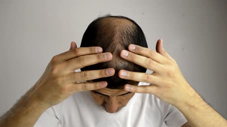 hajápoló : close up of man controls hair loss