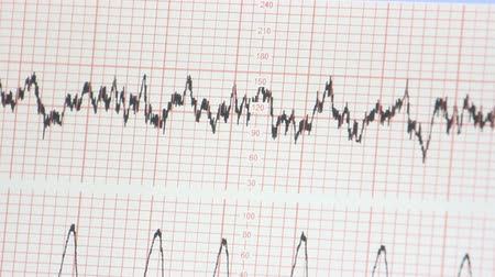 cardiological : obtaining an electrocardiogram Stock Footage