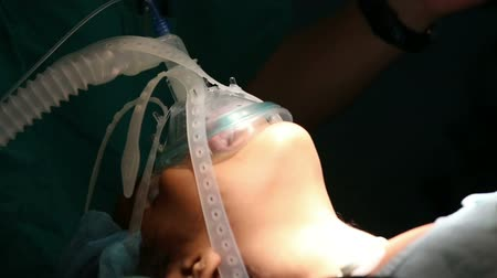 oxigén : Unidentified girl breathing in the oxygen mask in operation room