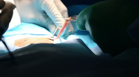 cirurgião : Surgical instruments using on hernia operation Stock Footage