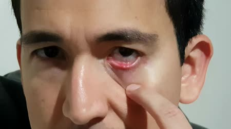 şişme : Close up of a person frustrated with a recurring eye infection. Stye. Stok Video