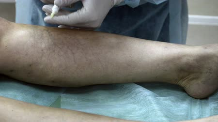 cerrahi : Medical injection patient leg. Sclerotherapy procedure