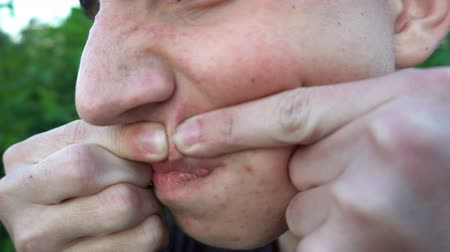 pus : the young man presses a pimple, dull skin. Stock Footage