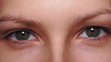 globo ocular : Gray, brown eyes, Sector heterochromia, looking at the camera. Portrait of a young woman, teenager