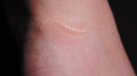 медицинская помощь : traces of a cut on the hand, a scar on the hand close-up macro. selective focus, human hand