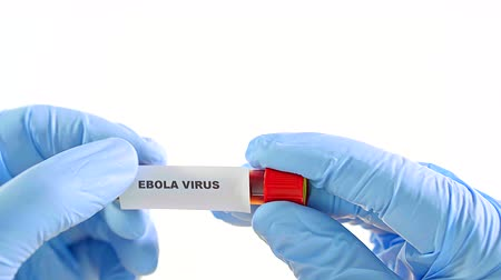 analyzes : Hands in blue gloves, keep medical tube with real blood. They paste shortcut ebola virus. Isolated on a white background Stock Footage