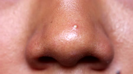 arcszín : the tip of the brown skin nose with pimple and blackheads Stock mozgókép