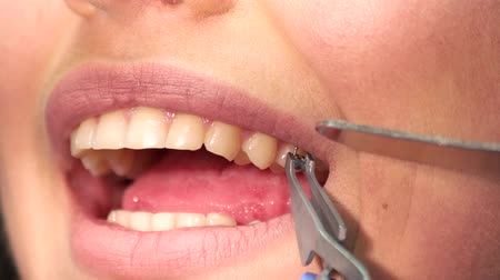 braces : Mouth of woman and bracket. Hand holding tweezers. Braces for bite correction. Stock Footage