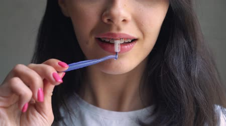 brackets : Close up Female Teeth with Braces and Interdental brush for Dental Braces Hygiene. Orthodontic Treatment. Front view. Girl cleans braces Stock Footage